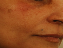 After Treatment - Immediately post the filler injection