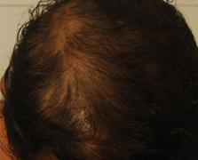 Before Treatment - Pre treatment showing extensive hair loss in a 42 year old woman