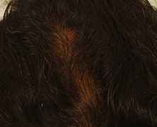 After Treatment - After 6 sessions of QR 678 Mesotherapy showing hair regrowth