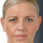 Antiaging-Botox-Injection_4